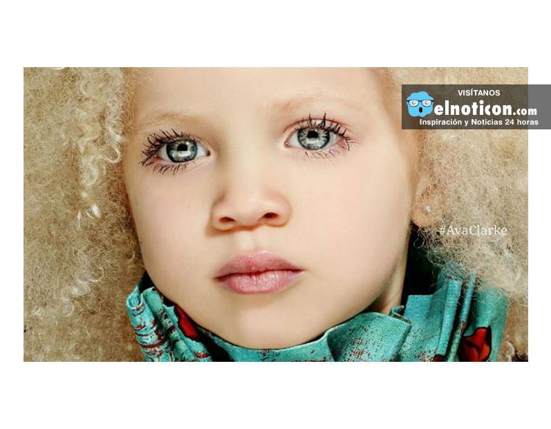 Ava Clarke, la pequeña albina afroamericana que conquista