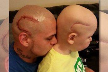 Se tatúa cicatriz para mostrar solidaridad con su hijo