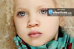 La hermosa niña albina de raza negra que nos enseña que ser diferentes es ¡Lo mejor!