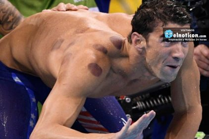 Conoce la razón de los moretones circulares en los cuerpos de algunos deportistas olímpicos