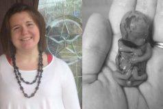 Esta mujer compartió la bella foto del diminuto cuerpo de su bebé de 11 semanas para crear conciencia