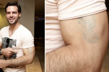 Alex Adámes se deshace de antiguo tatuaje