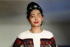 Una modelo atacada con ácido abrió la semana de la moda en Nueva York