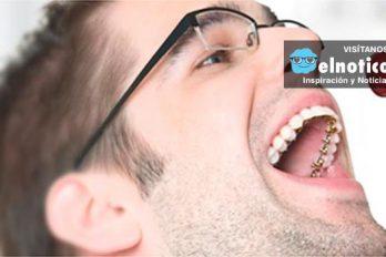 ¿Quieres hacerte ortodoncia pero no deseas que se vean los brackets? ¡Hay una gran alternativa!