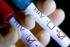 El virus del VIH fue eliminado por completo de la sangre de un paciente británico