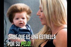 ¡Qué hermosa cabellera la de este bebé! Por algo le dicen 'Bebé osito'