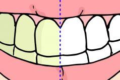 3 productos caseros que puedes usar para eliminar el sarro de tus dientes de una vez por todas