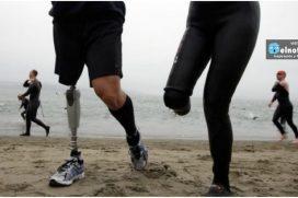 Las personas se están cortando las extremidades porque desean ser discapacitadas