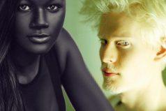 Belleza en blanco y negro: modelos que convirtieron el inusual color de su piel en tendencia. ¡Bienvenida la diversidad!