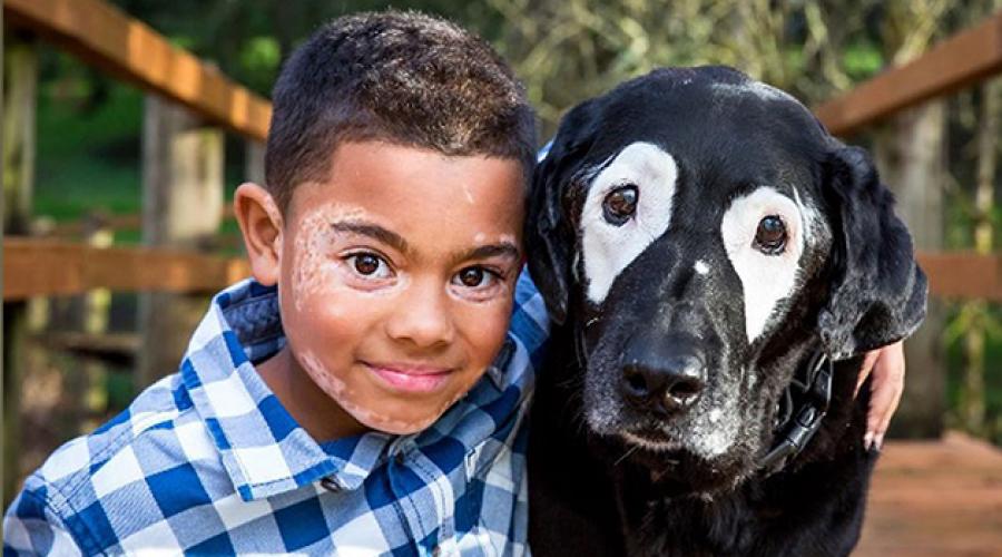 El niño que tiene vitiligo y gracias a su perro superó sus complejos, ¡hermosa historia de amor!