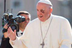 El Papa Francisco sigue afectado por su golpe en el ojo. ¡Nos entristece y esperamos que se recupere pronto!