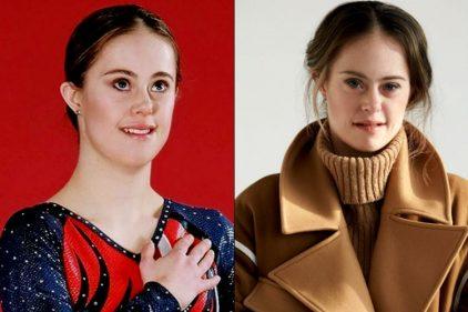La historia de la campeona de gimnasia y modelo con síndrome de down