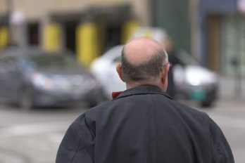 Estudio: hombres con calvicie tendrían más posibilidad de hospitalización por COVID-19