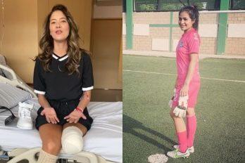 """Voz de apoyo de Daniella Álvarez a la arquera que perdió su pierna: """"aférrate a la vida"""""""