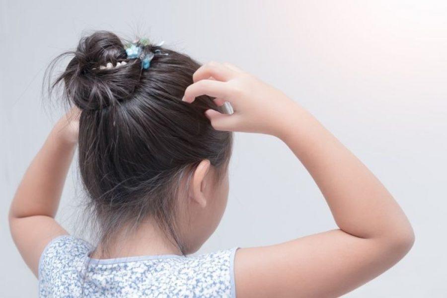 Niña muere por infestación de piojos: investigan a los padres por homicidio