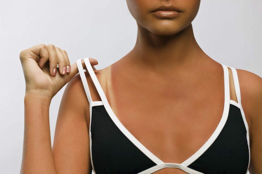 'Marquinha', la peligrosa moda de bronceado que se hace popular