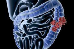 El uso excesivo de antibióticos aumenta el riesgo de cáncer