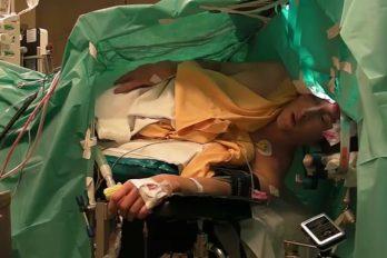 Cantante de ópera interpreta melodía durante su cirugía en el cerebro