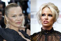 ¿Qué le pasó al rostro de Pamela Anderson?
